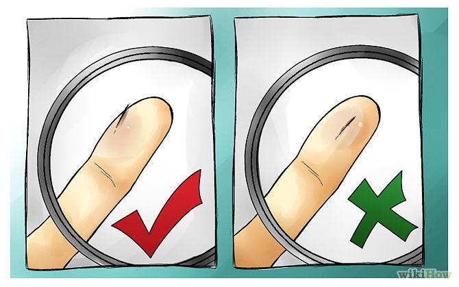 איך לשלוף קוץ מהאצבע