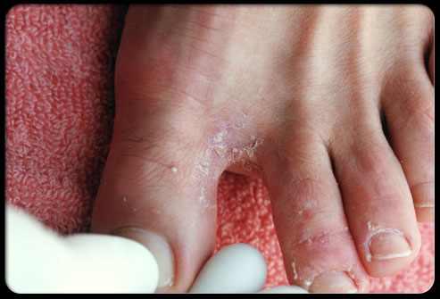 הבעיות הנפוצות בכפות הרגליים ודרכי הטיפול בהן