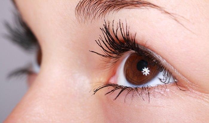 נקודות שחורות בעיניים