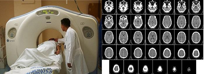 מכונת CT חדשה