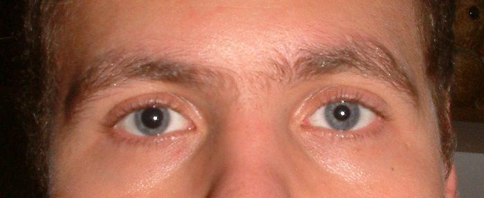 עיניים ובריאות