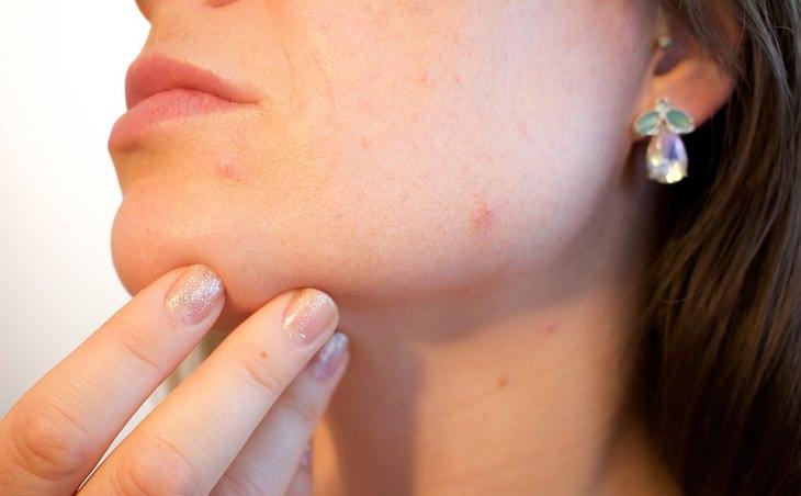 אישה ממששת אזור עם פצעים בפנים
