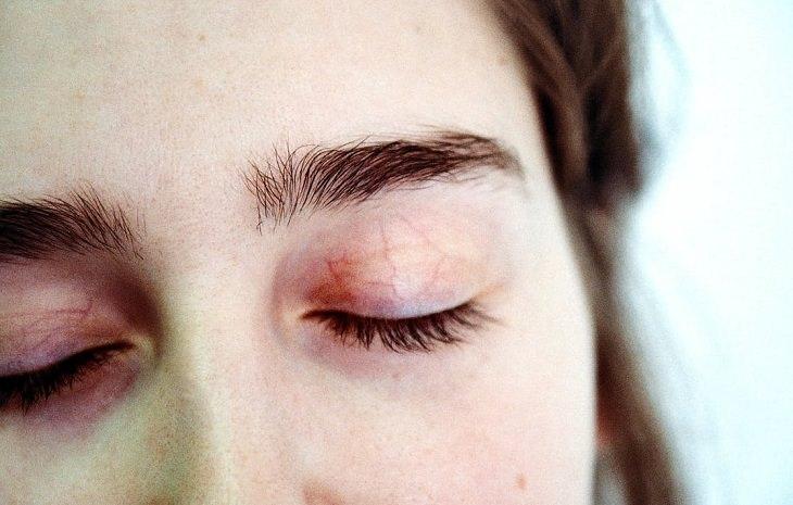 אישה עוצמת את עיניה ומראה עפעפיים עם נימים בולטים