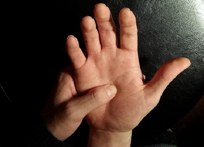 עיסוי בכפות הידיים להפגת כאבים