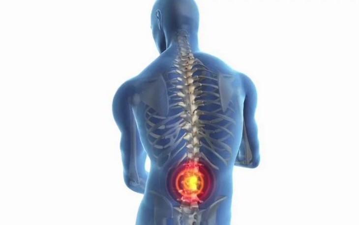 מחלות שכאבי גב מעידים עליהן: איור ממוחשב של אדם והשלד שלו עם נקודה על הגב התחתון