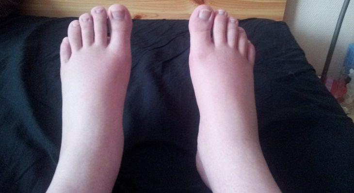כפות רגליים נפוחות