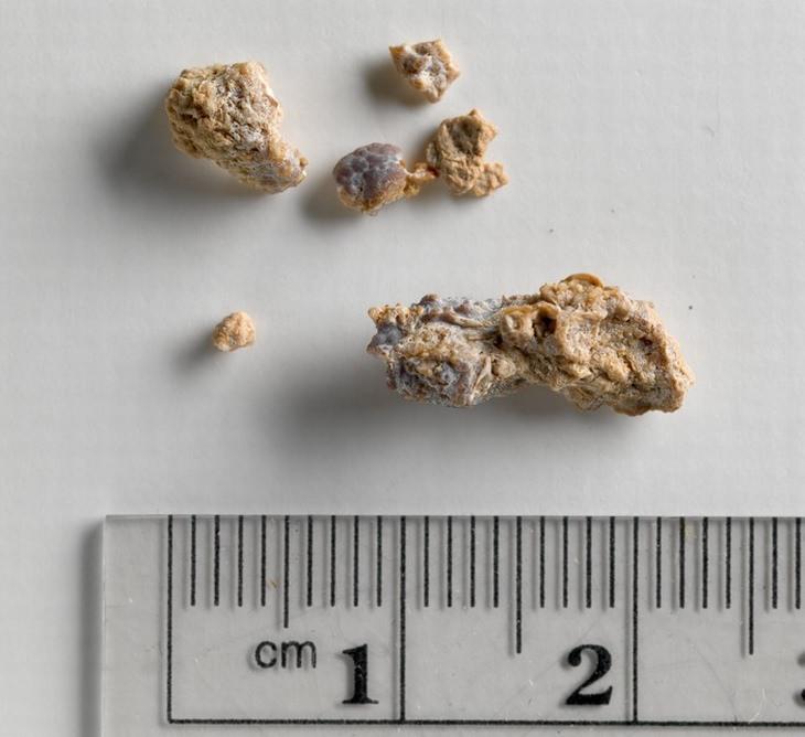 אבני כליות בגדלים שונים ליד סרגל מדידה