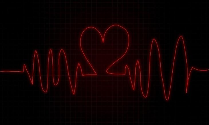 מוניטור לב