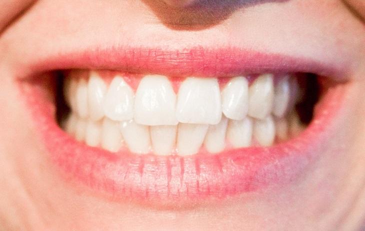 שיניים מתחככות זו בזו