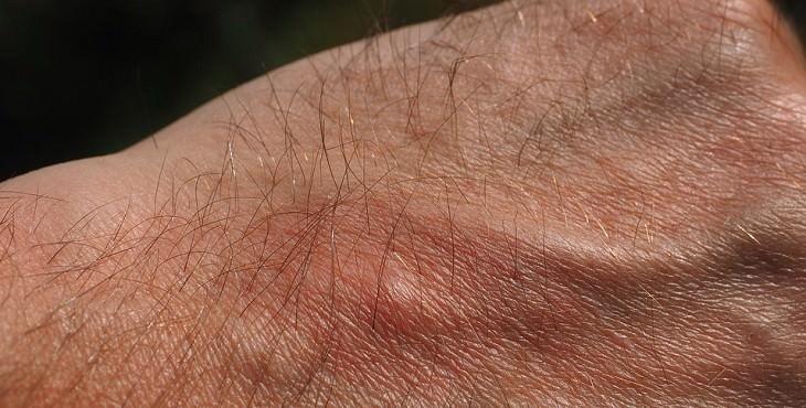גב יד של גבר עם עקיצה של יתוש
