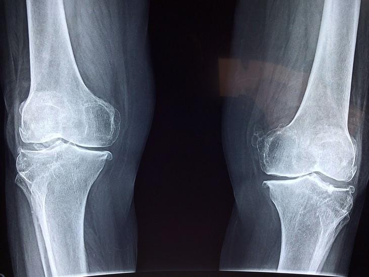 צילום רנטגן של עצמות