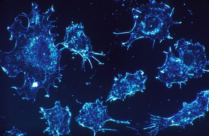 פריטים מסרטנים בבית - תאי סרטן