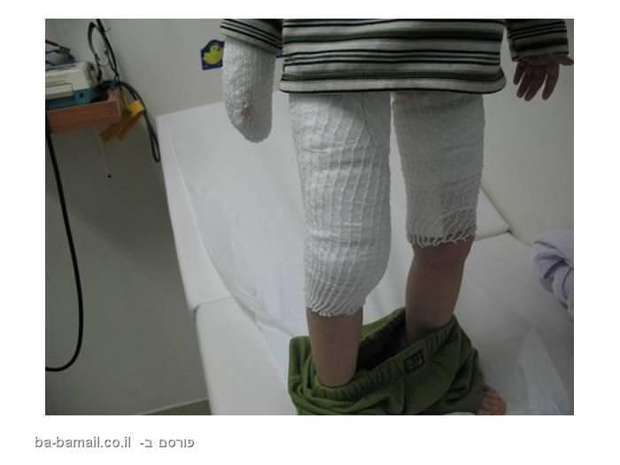 פציעות העלולות להגרם  מפיקות