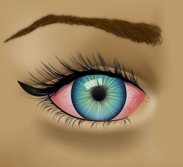 איור של עיניים עם אדמומיות